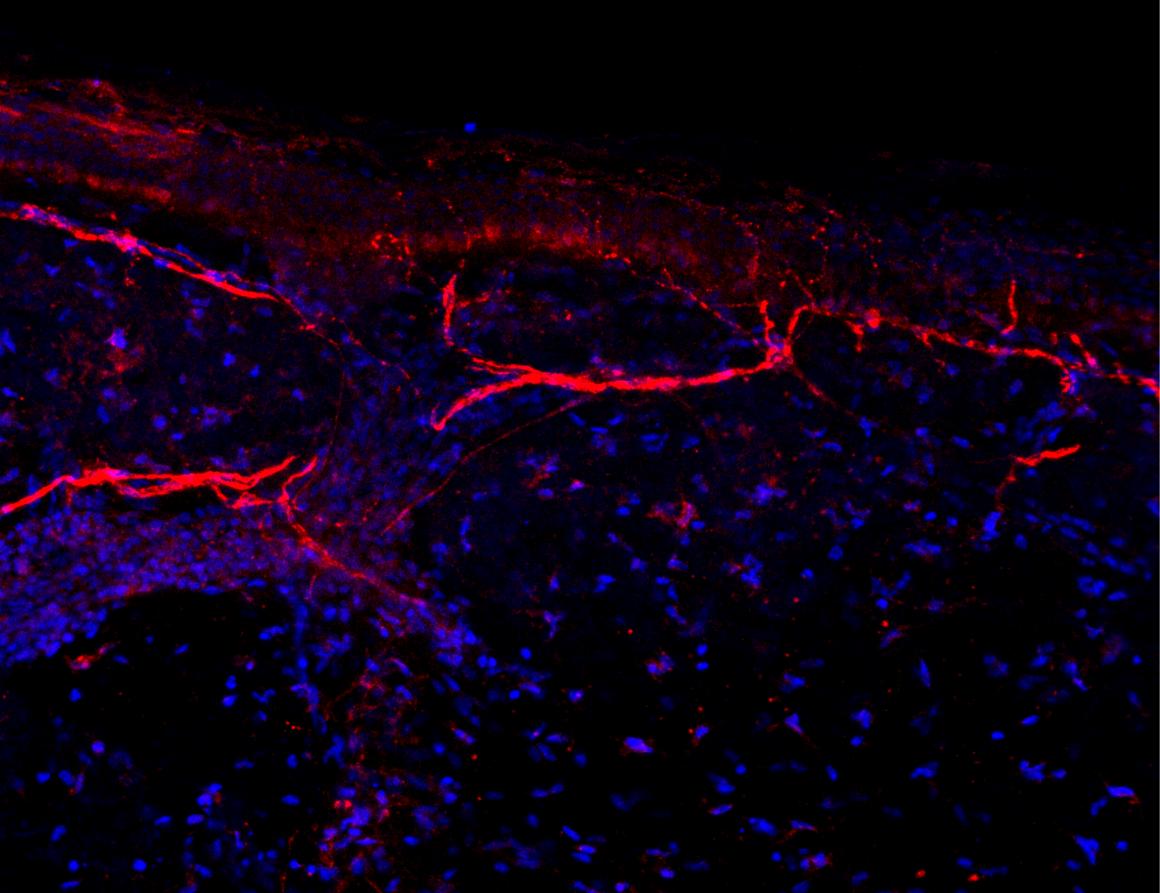 Neuroimmune Regulation of Itch